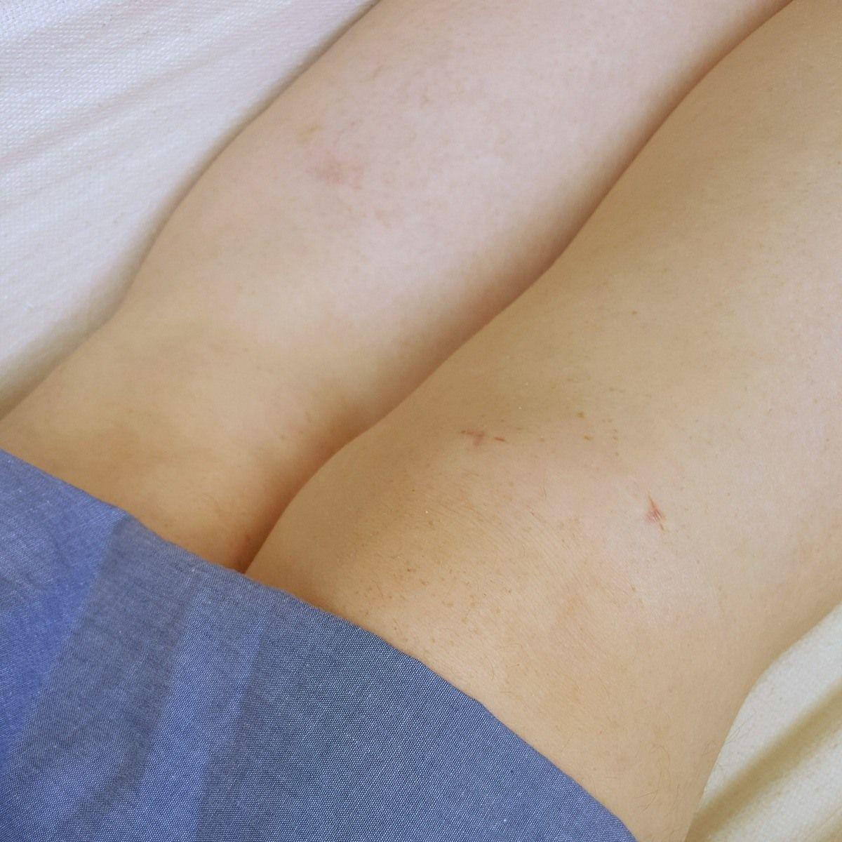Cirurgia do joelho: como foi a operação do menisco (meniscectomia), o pós operatório e a recuperação.